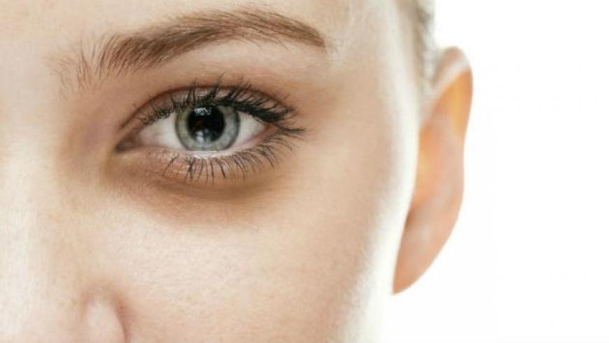 Cinco recomendaciones para eliminar las ojeras